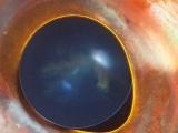 カサゴの目